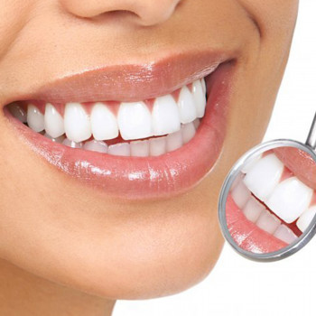 dr Stajčić, oral surgery clinic-  Composite veneers made in a laboratory