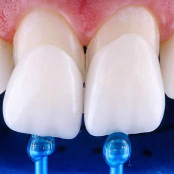Dental Cross - Composite veneers made in an office