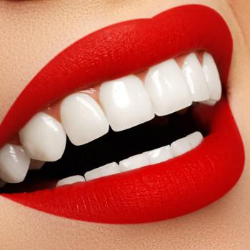 Vio Dental - Composite veneers made in an office