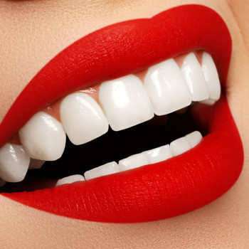 Hollywood smile (zirconia ceramic, one jaw) - Dental implantology center HURČAK