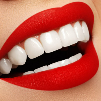 Dentist's office Delić dent - Hollywood smile (zirconia ceramic)
