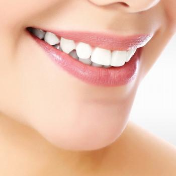 Dentas - Digital Smile Design