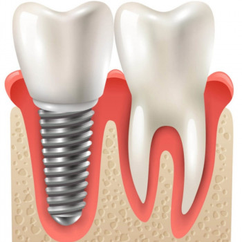 Implant Centar Martinko - Metal-ceramic crown on implant