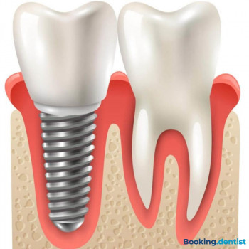 Stimac center of dental medicine - Metal-ceramic crown on implant