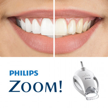 ZOOM teeth whitening  - Center of modern and cosmetic dentistry Dentics