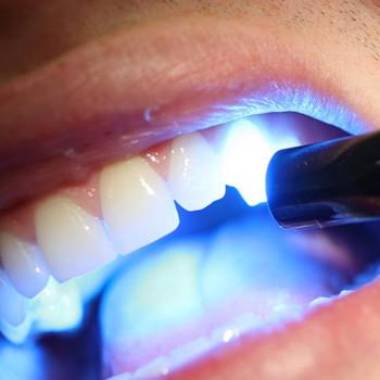 Zahnaufhellung mit Laser - Zahnarztzentrum  Ledikend