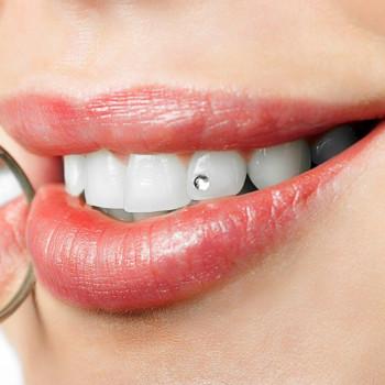Videntis - Zubni nakit (cirkon)