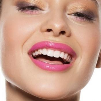 Riviera Dent - Twinkles Zahnschmuck (verschiedene Formen, Gold)