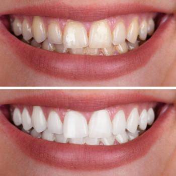 Apostoloski Dental Centar - Zahnaufhellung im Büro
