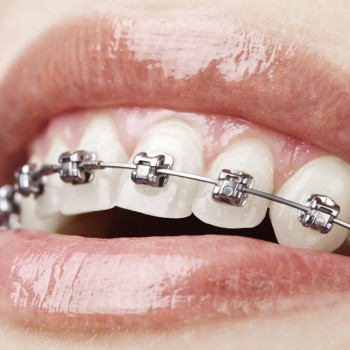A-dent - Fixed dental braces (one jaw)
