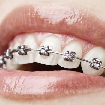 Vio Dental - Fixed dental braces (one jaw)