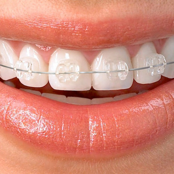 A-dent - Fixed esthetic dental braces (one jaw)