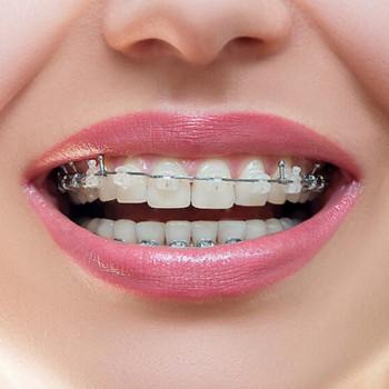 BriliDENT dental studio - Damon metal orthodontic device (one jaw)