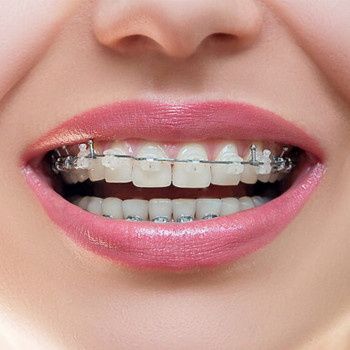DentalSan - Damon metal orthodontic device (one jaw)