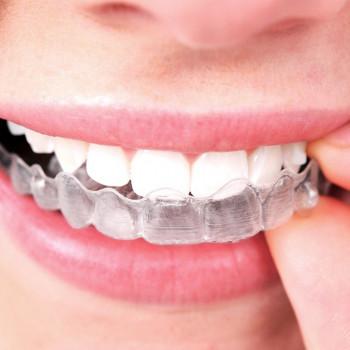 Invisaligne orthodontic device (one foil) - Zahnklinik Dr. Zoran Nemanić