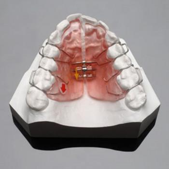 Stomatološka ordinacija Cvetković Dental Centar - Mobilni ortodontski aparat (jedna vilica)
