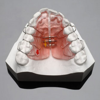 Nothing without a smile - Removable orthodontic device (one jaw)