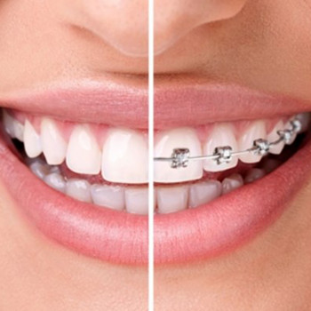 Dentist's office Delić dent - Self-ligating brackets: Quick (metal - one jaw)