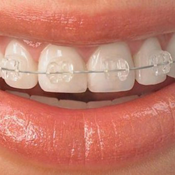 Self-ligating brackets: Quick (esthetic - one jaw) - Belgrade Dental House