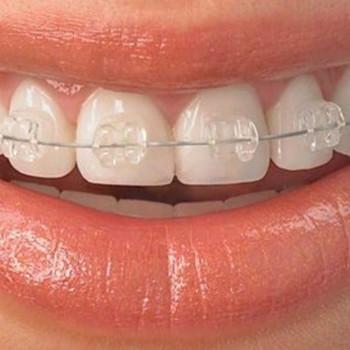 Dental centar Repić - Self-ligating brackets: Quick (esthetic - one jaw)
