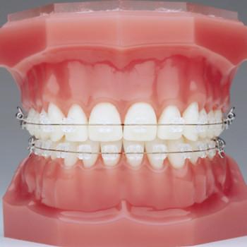 Feste Zahnapparaturen (Saphir Schlösser - ein Kiefer) - Dentamico
