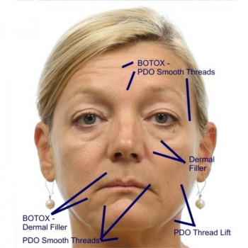 Hygea - PRF facial skin regeneration (Vampire face lifting)