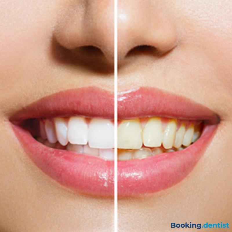 Nichts ohne ein Lächeln - Zahnsteinreinigung