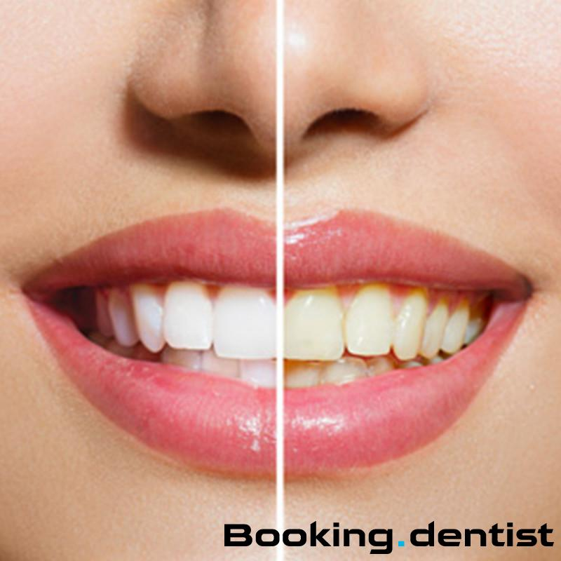 Nena Zahnarztpraxis - Zahnsteinreinigung