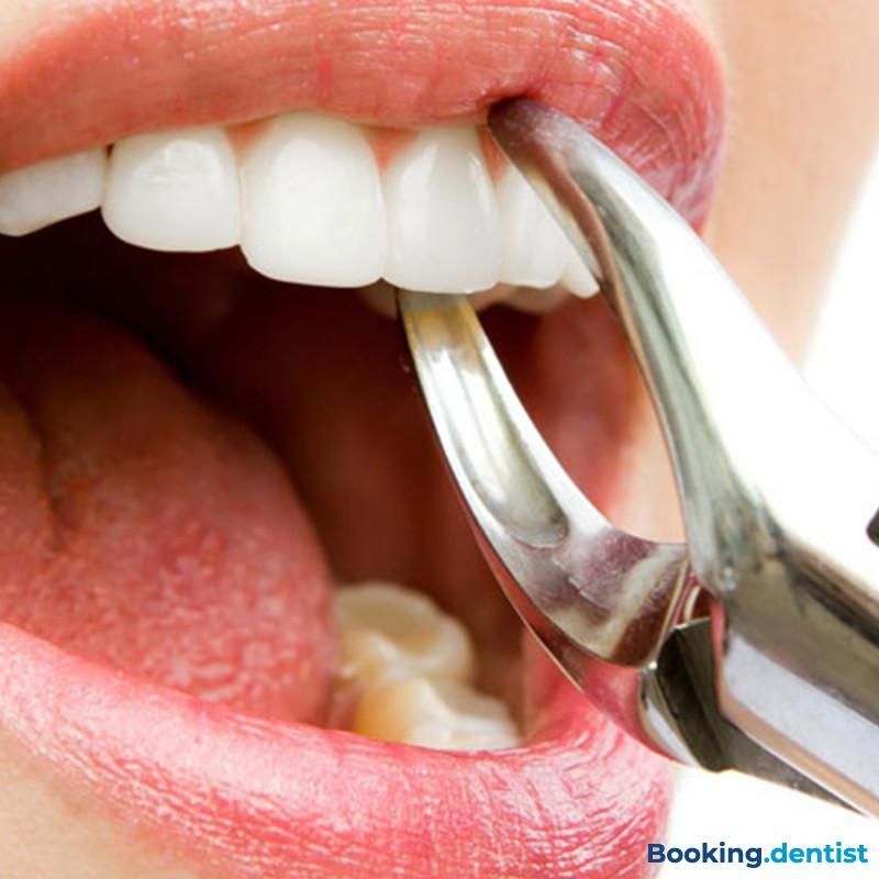 Zahnarztpraxis Delić dent - Extraktion (Zähneziehen)
