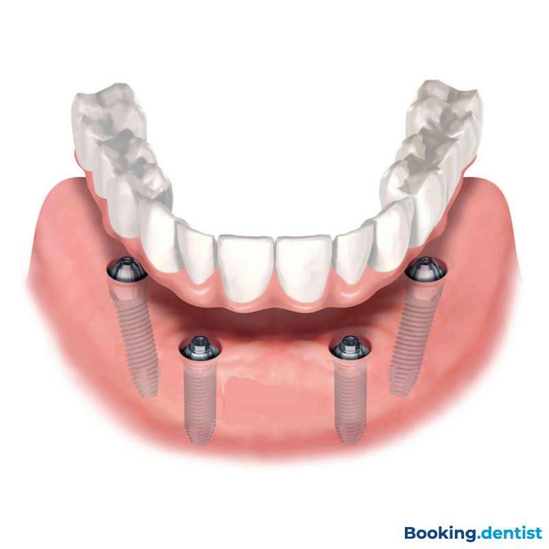 Videntis - All on 4 (acrylic teeth)