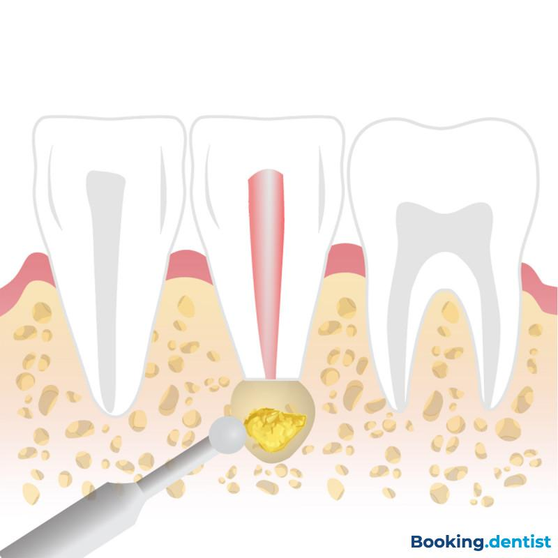 Ordinacija oralne hirurgije Implantodent - Apikotomie