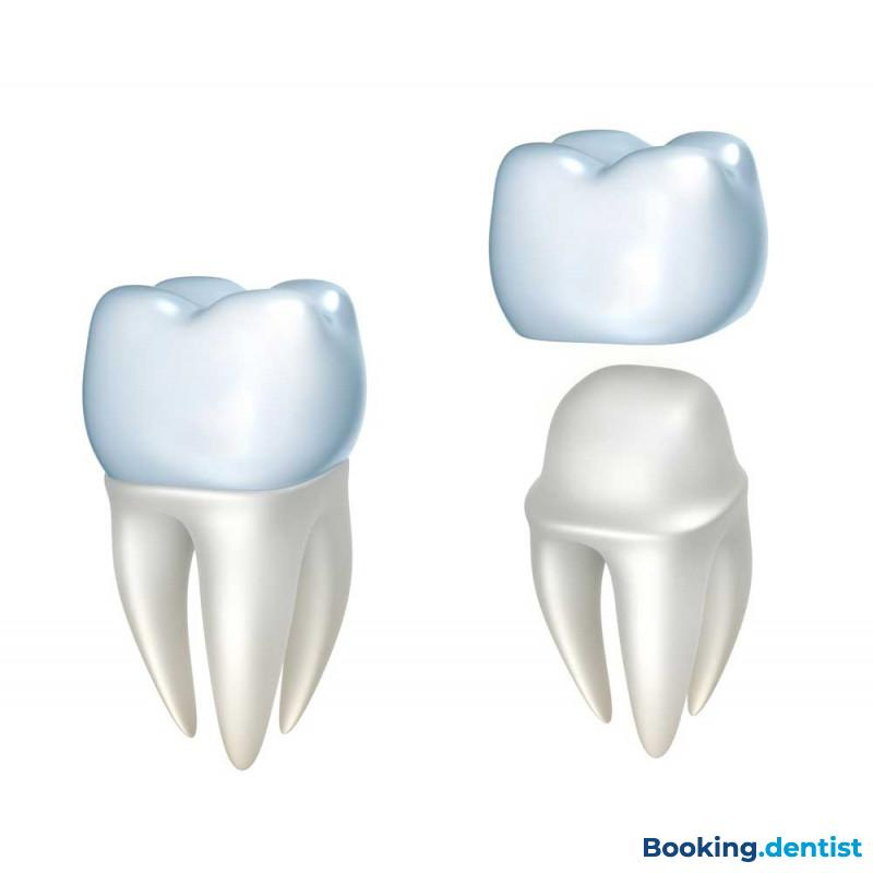 Non-metal crown - Center of modern and cosmetic dentistry Dentics