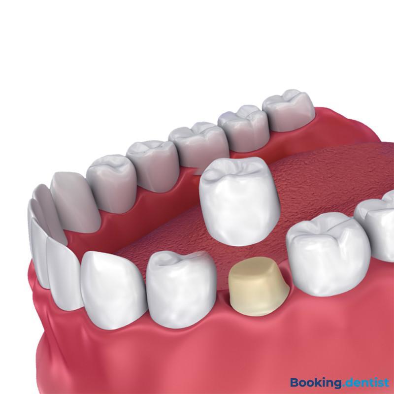 Dental Corner Esthetics - Zirconium crown