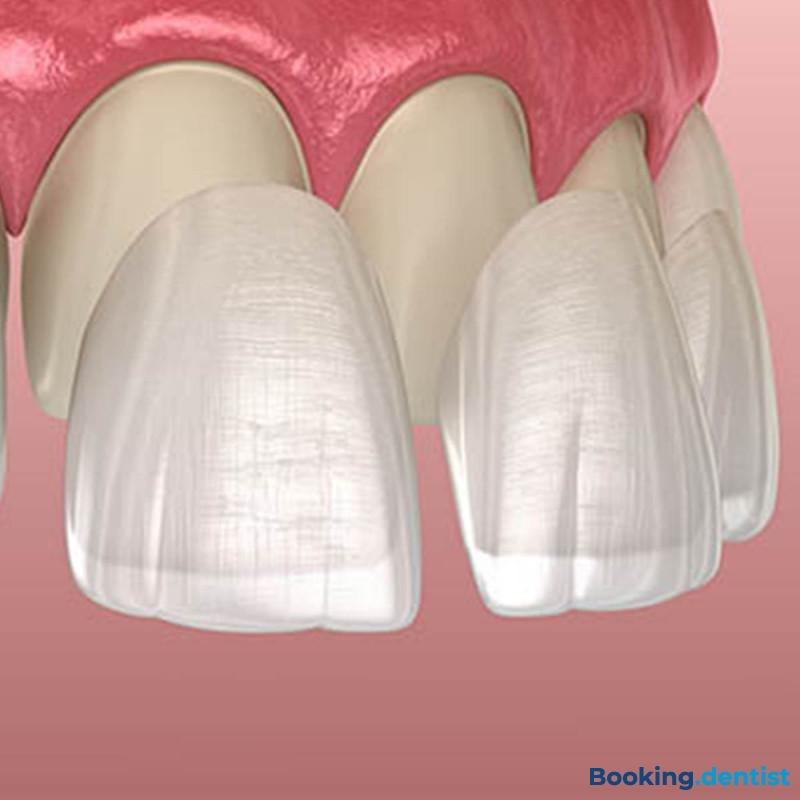Premium Dent - Porcelain laminates (Veneers)
