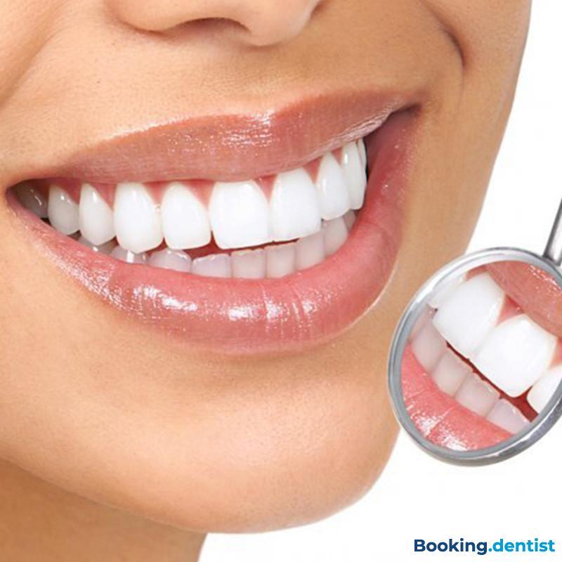 Composite veneers made in an office - Dental Practice Rafaj