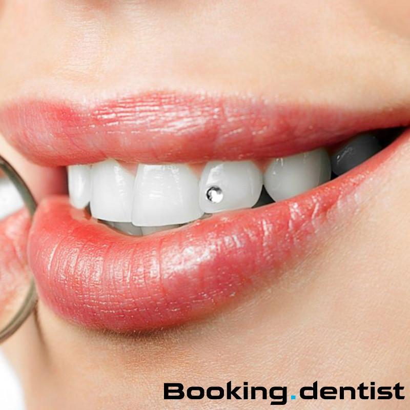 Identa - Dental jewelry (zirconium)