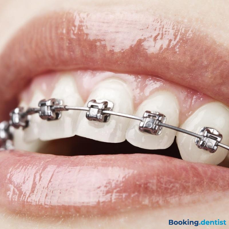Fixed dental braces (one jaw) - Dentist's office Gala dent