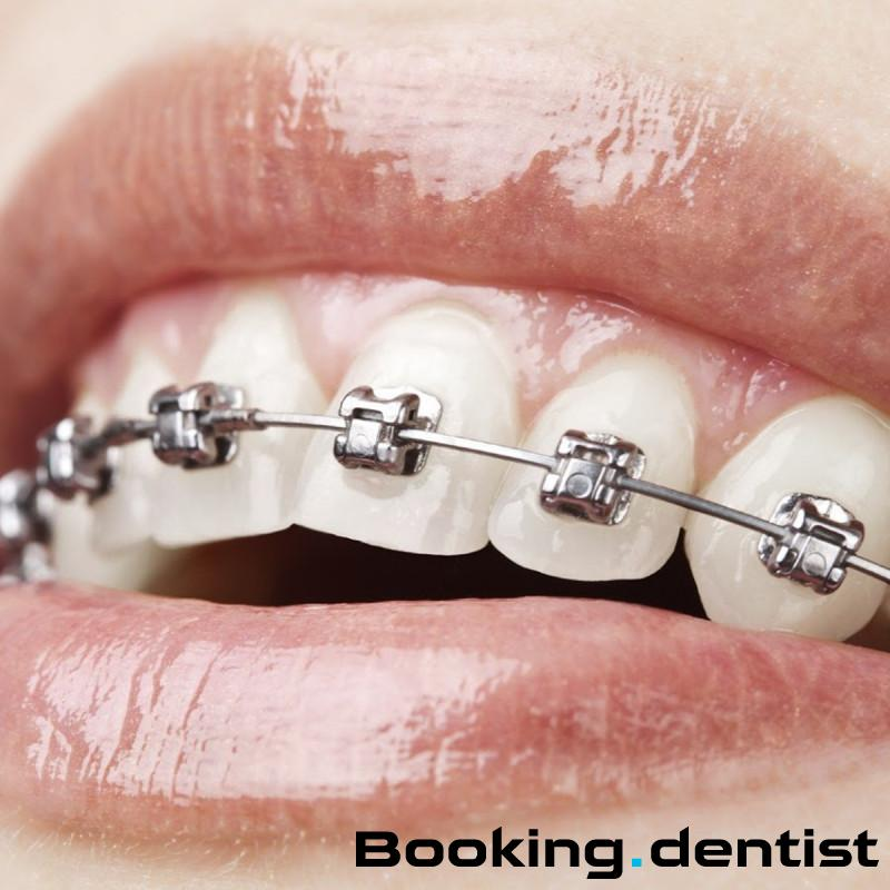 Dental practice Marinac Dental Studio - Fixed dental braces (one jaw)