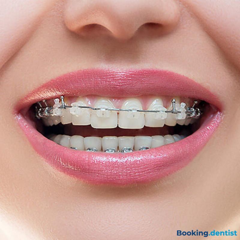 BriliDENT dental studio - Damon ortodonte Metallapparatur (ein Kiefer)