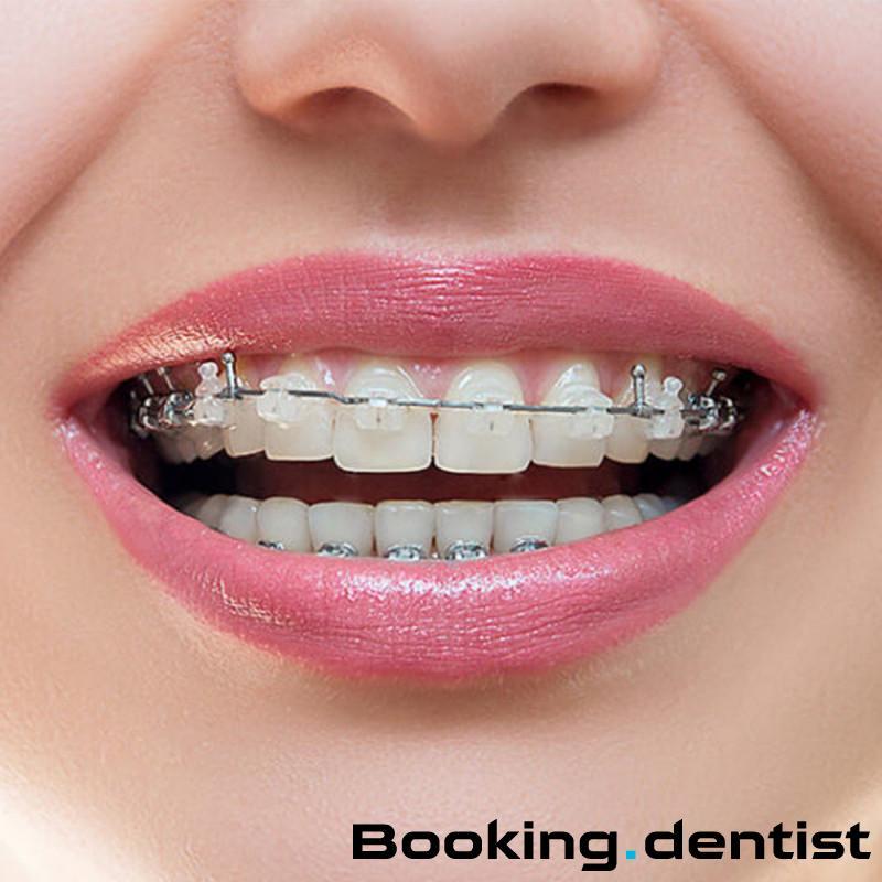 Dental Care Croatia - Damon esthetic orthodontic device (one jaw)