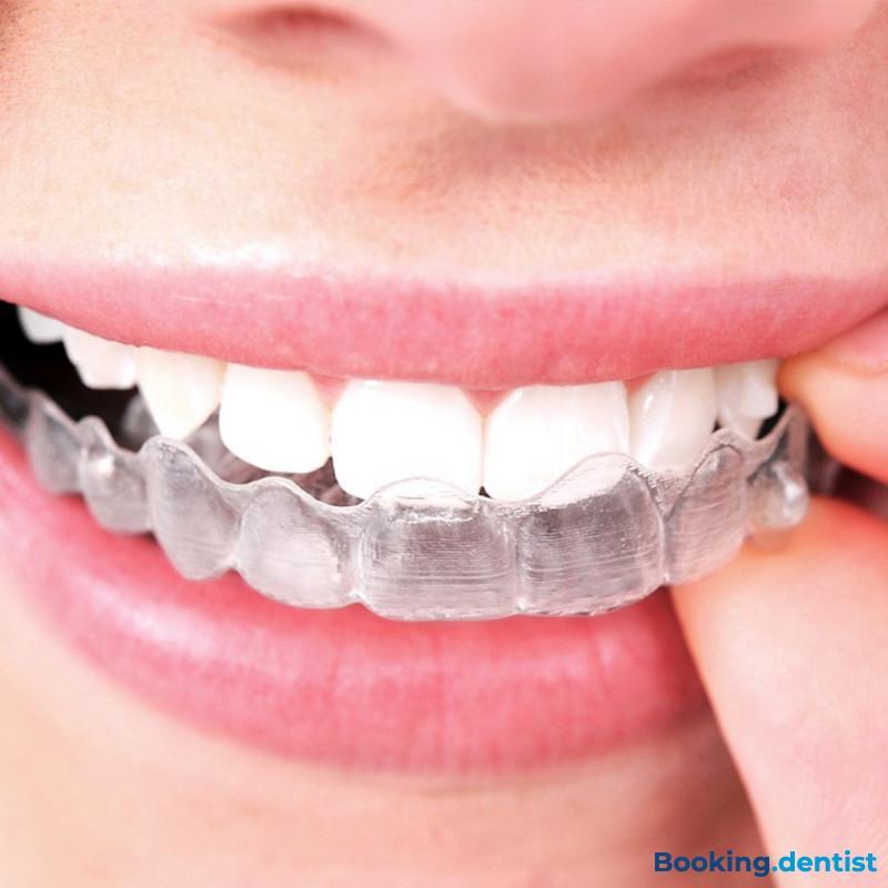 Stomotologija Miščević - Invisaligne ortodontski aparat (jedna folija)
