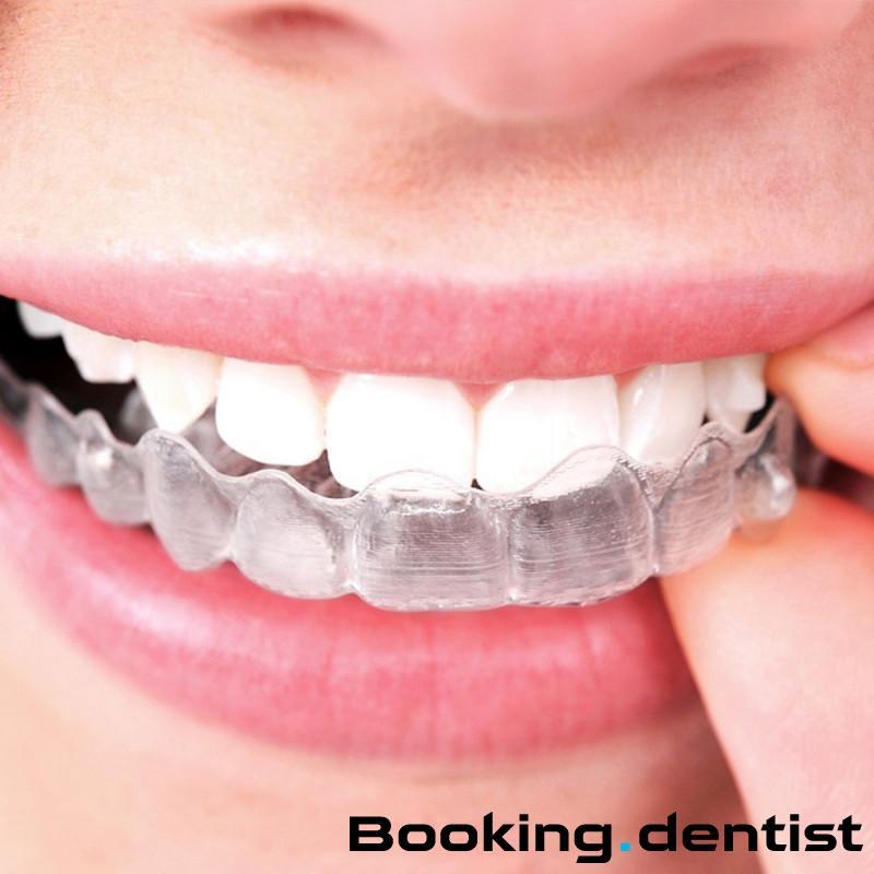 Specijalistička stomatološka ordinacija Dr Josić - Invisaligne ortodontski aparat (jedna folija)
