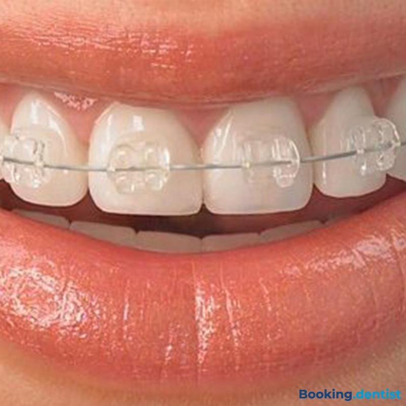 Zahnarztpraxis Delić dent -Selbstligierende Schlösser: Quick (ästhetisch - ein Kiefer)