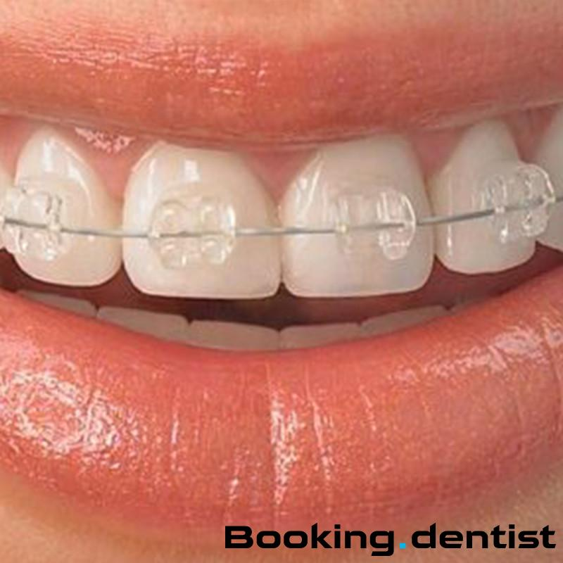 Dental practice Dr Dašić Suzana Dašić - Self-ligating brackets: Quick (esthetic - one jaw)